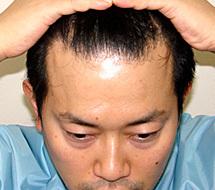 Aga治療 宮迫 宮迫博之さんの薄毛AGA対策はクリニックでのハゲ治療だった!?